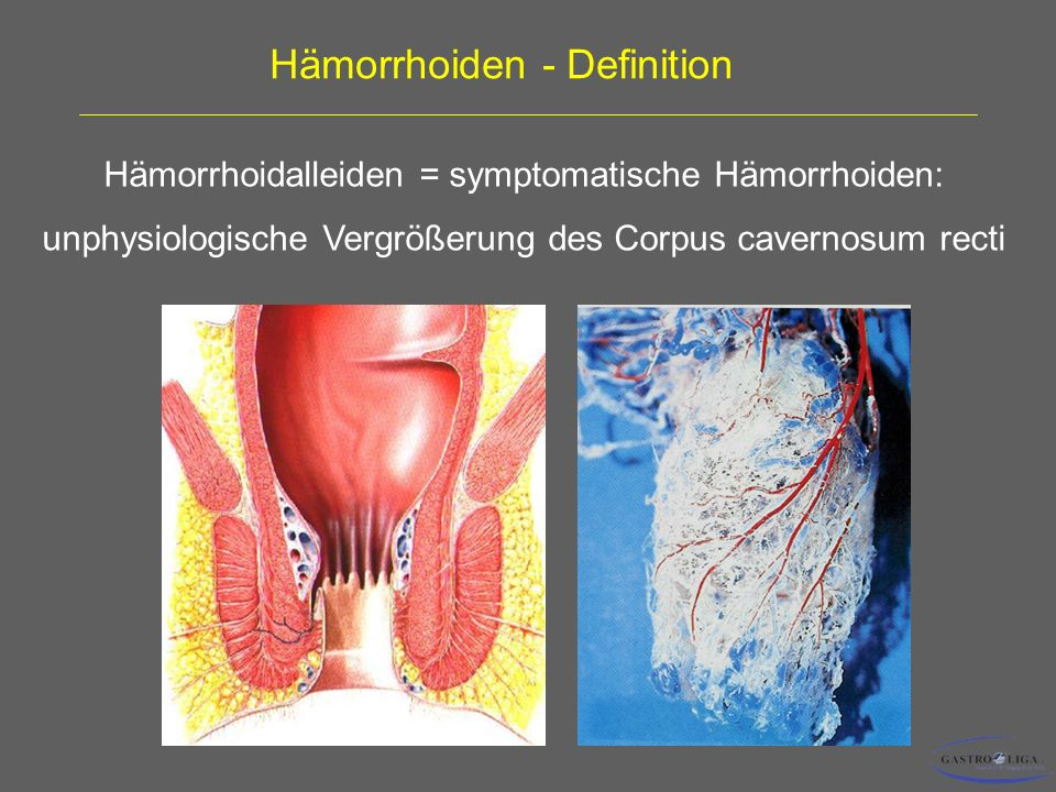 Hämorrhoiden - Definition