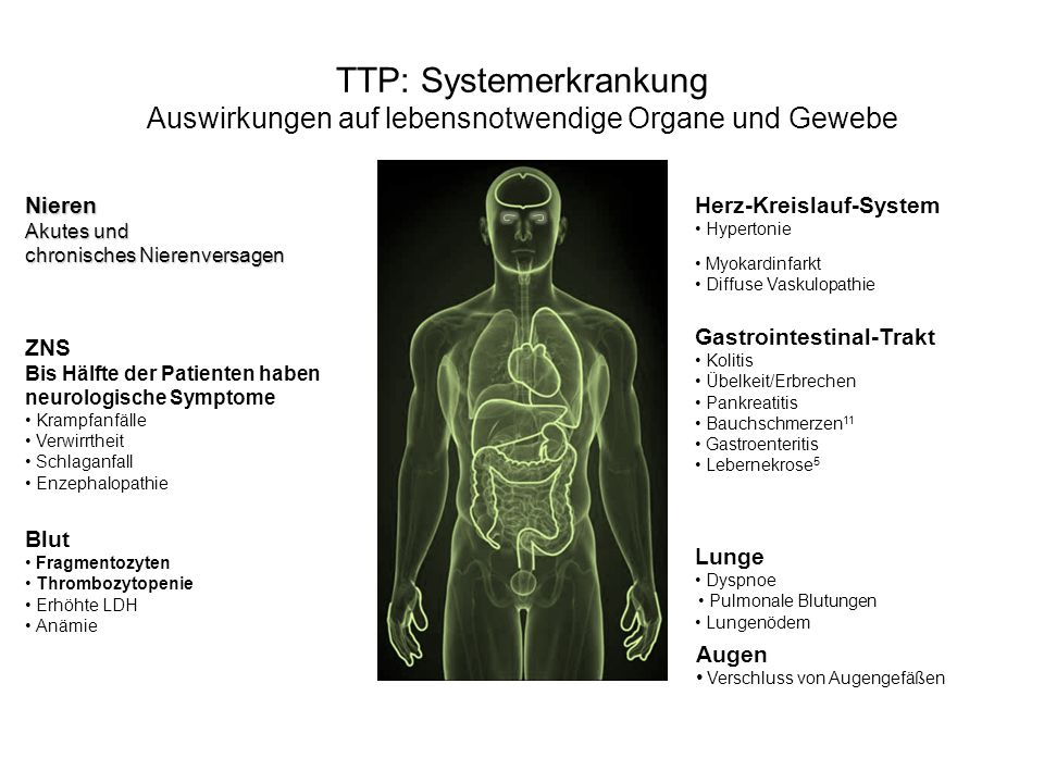 TTP: Systemerkrankung Auswirkungen auf lebensnotwendige Organe und Gewebe
