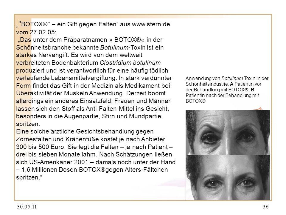 """"""" BOTOX® – ein Gift gegen Falten aus www.stern.de vom 27.02.05:"""