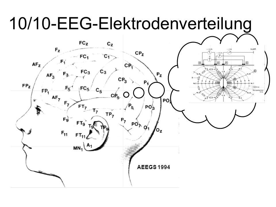 10/10-EEG-Elektrodenverteilung
