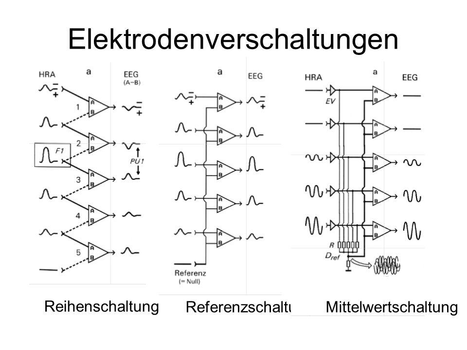 Elektrodenverschaltungen