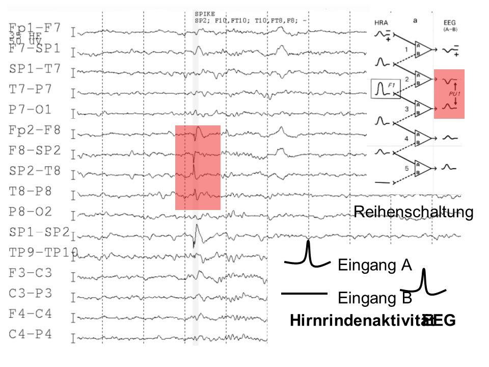 Reihenschaltung Eingang A Eingang B Hirnrindenaktivität EEG
