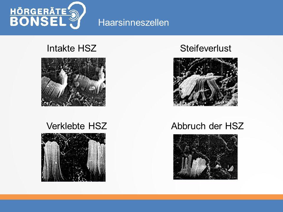 Haarsinneszellen Intakte HSZ Steifeverlust Verklebte HSZ Abbruch der HSZ