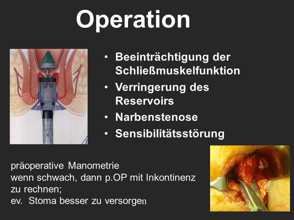 Operation Beeinträchtigung der Schließmuskelfunktion