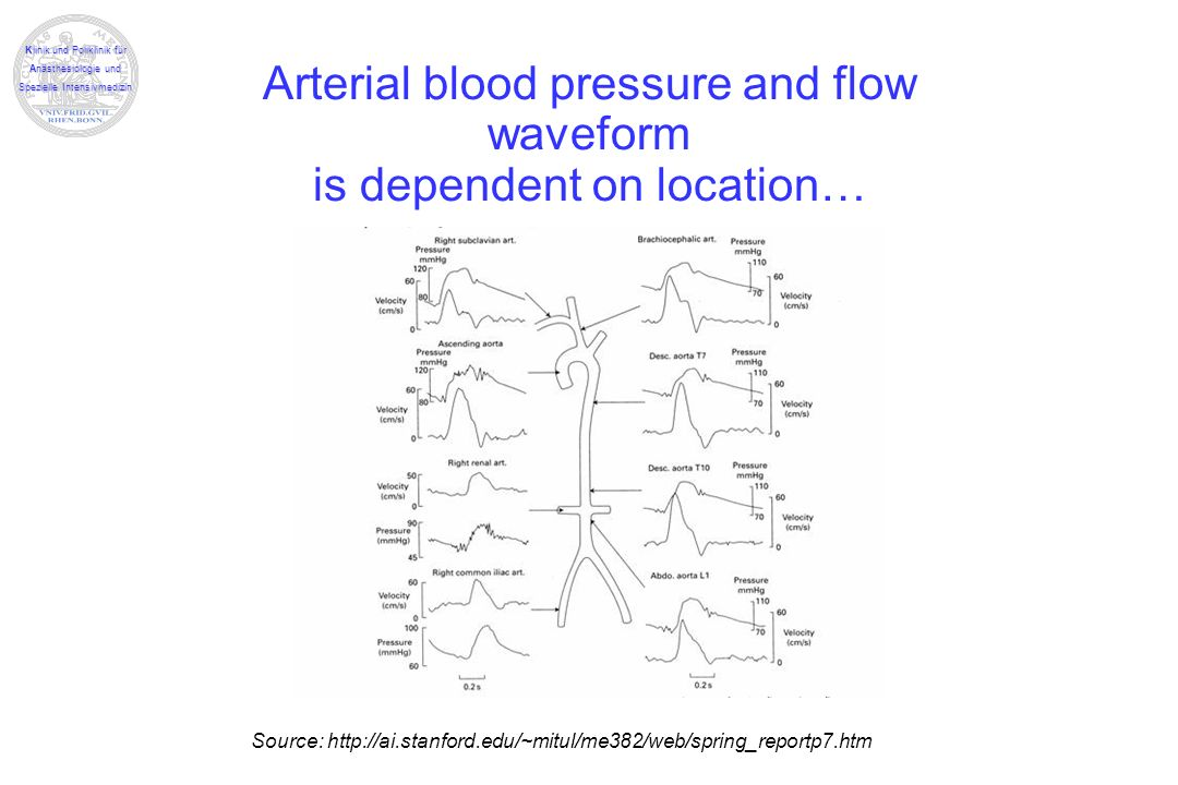 Arterial blood pressure and flow waveform is dependent on location…