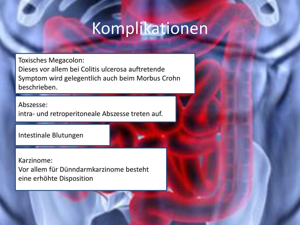 Komplikationen Toxisches Megacolon: