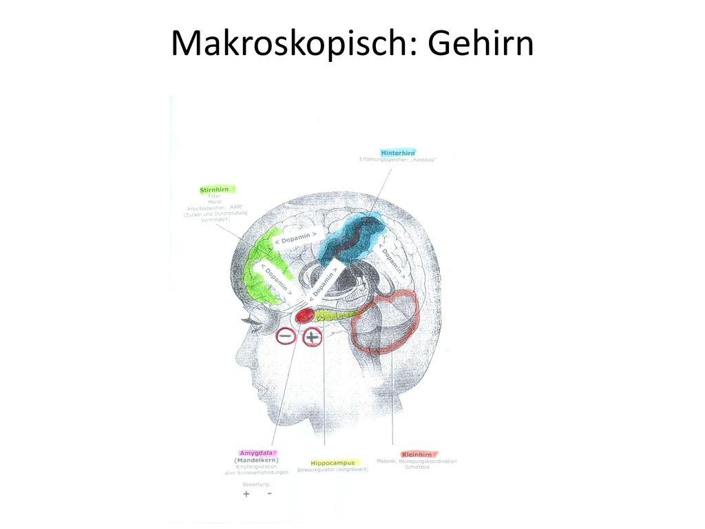 Makroskopisch: Gehirn