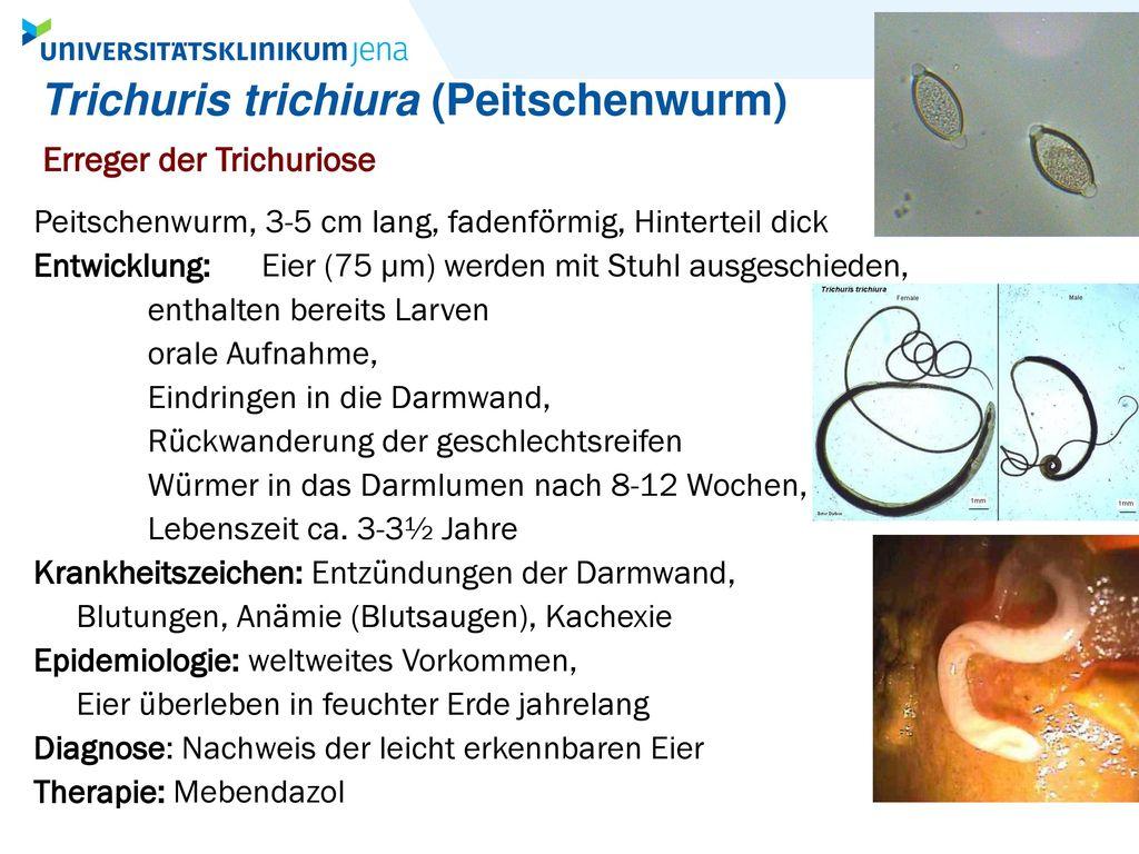 Trichuris trichiura (Peitschenwurm)