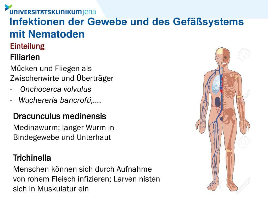 Infektionen der Gewebe und des Gefäßsystems mit Nematoden