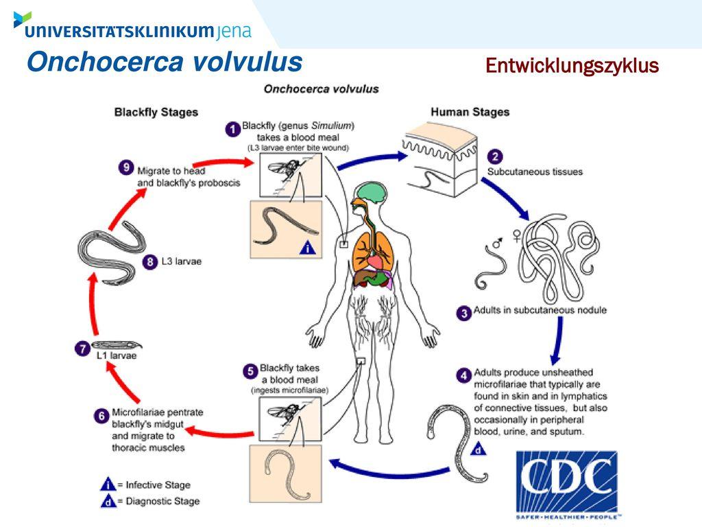 Onchocerca volvulus Entwicklungszyklus