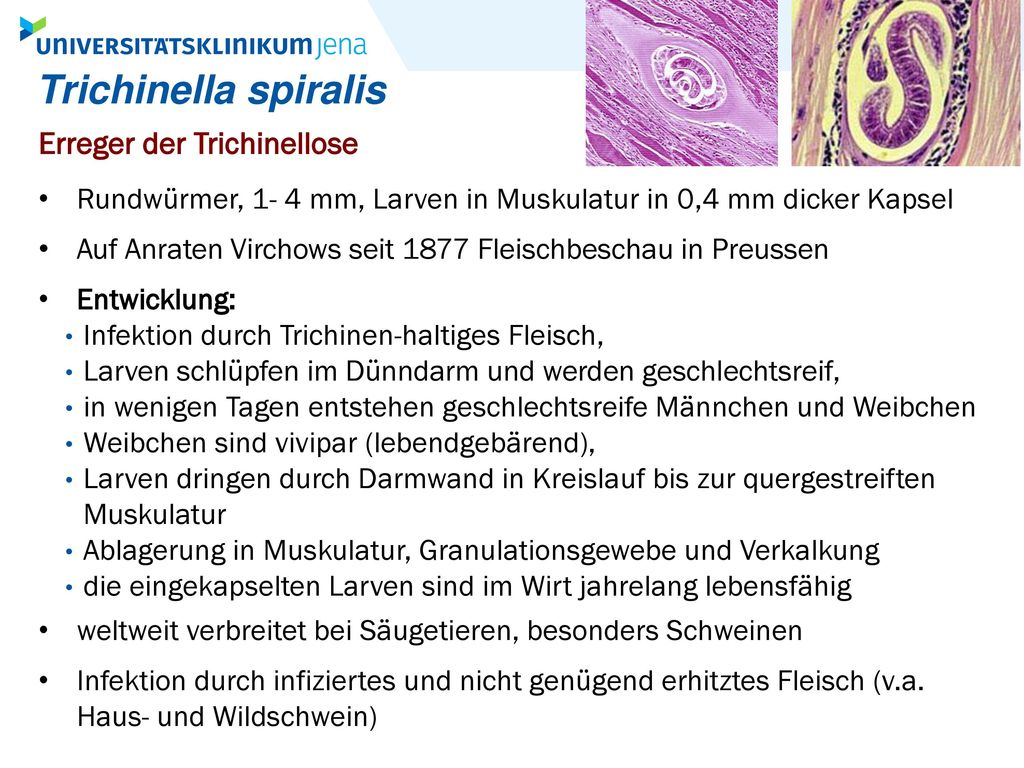 Trichinella spiralis Erreger der Trichinellose