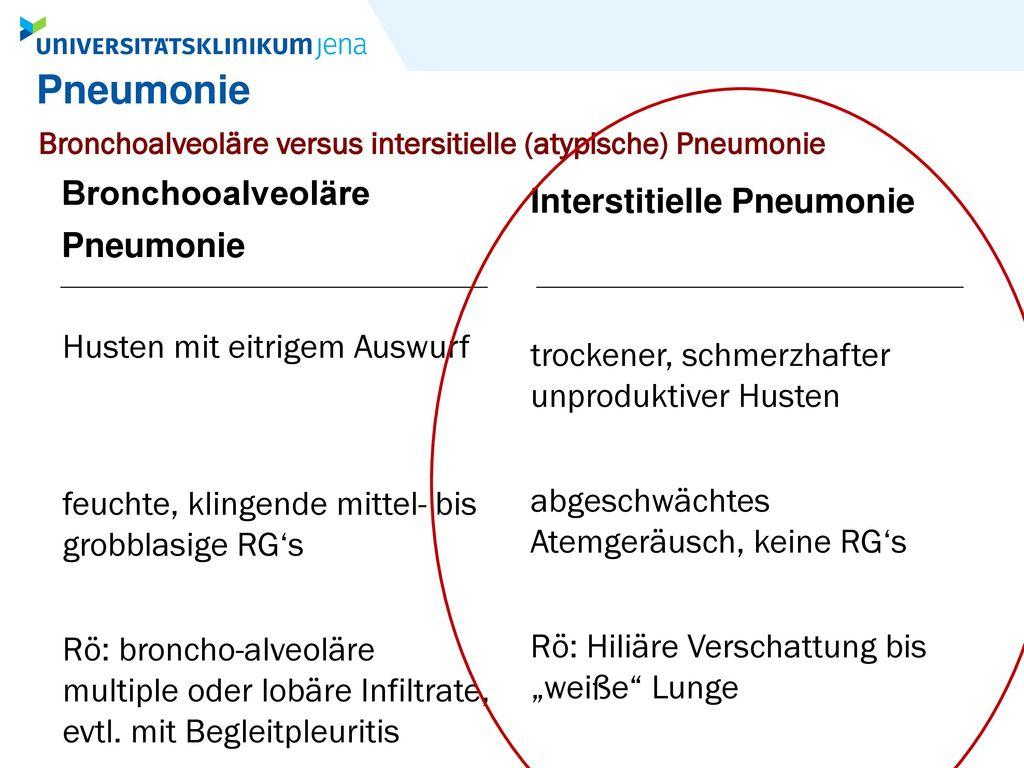 Pneumonie Bronchooalveoläre Interstitielle Pneumonie Pneumonie