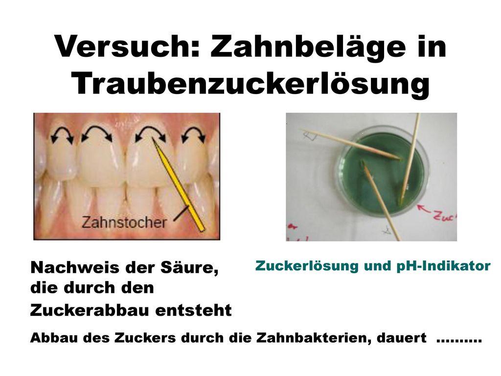 Versuch: Zahnbeläge in Traubenzuckerlösung