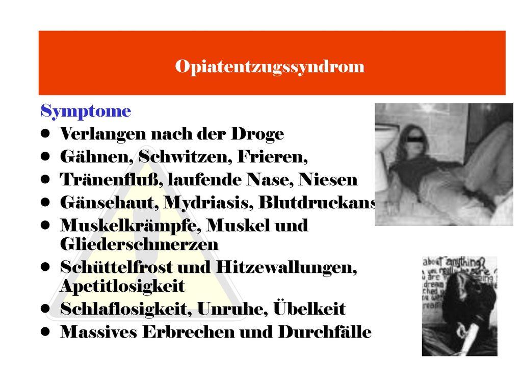 Opiatentzugssyndrom Symptome. Verlangen nach der Droge. Gähnen, Schwitzen, Frieren, Tränenfluß, laufende Nase, Niesen.