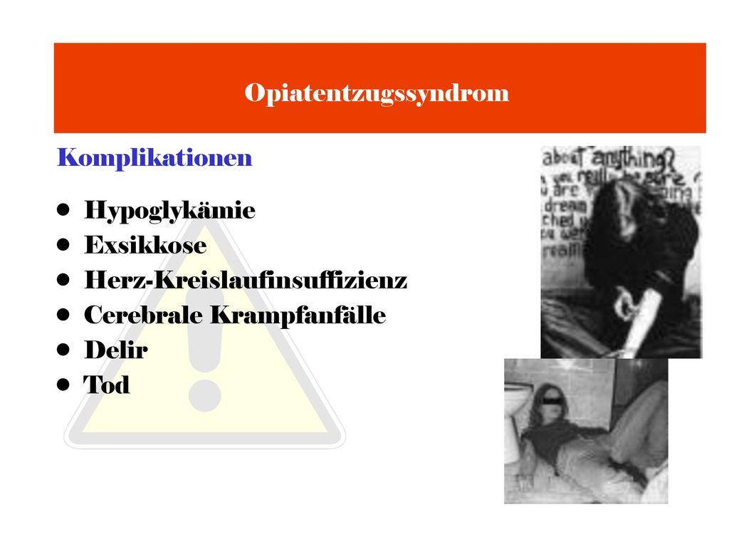 Opiatentzugssyndrom Komplikationen. Hypoglykämie. Exsikkose. Herz-Kreislaufinsuffizienz. Cerebrale Krampfanfälle.