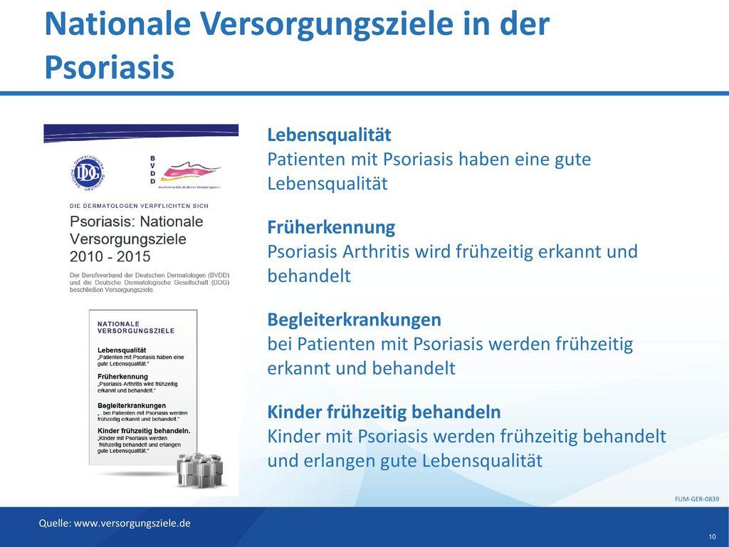 Nationale Versorgungsziele in der Psoriasis