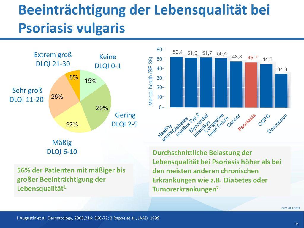 Beeinträchtigung der Lebensqualität bei Psoriasis vulgaris