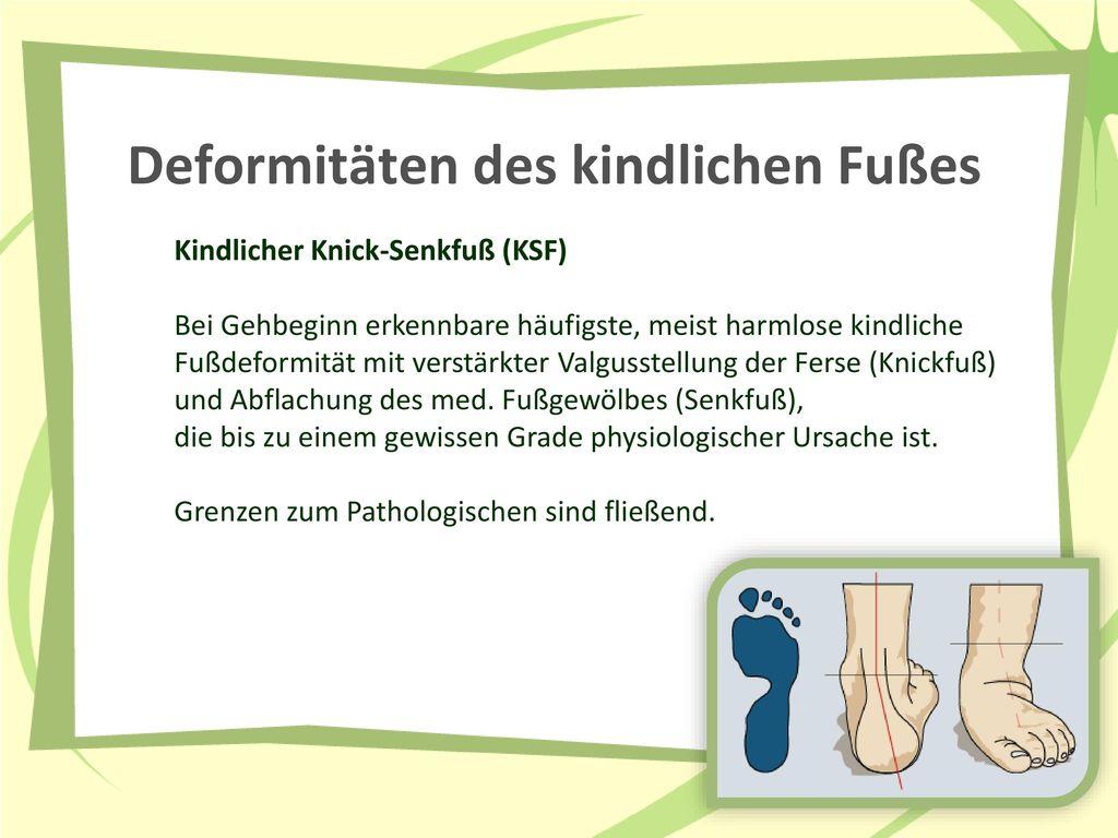 Deformitäten des kindlichen Fußes