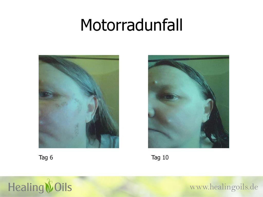Motorradunfall Tag 6 Tag 10 www.healingoils.de