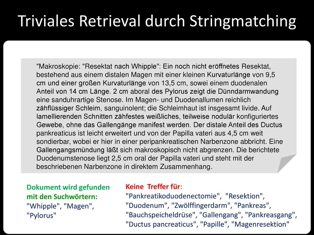 Triviales Retrieval durch Stringmatching