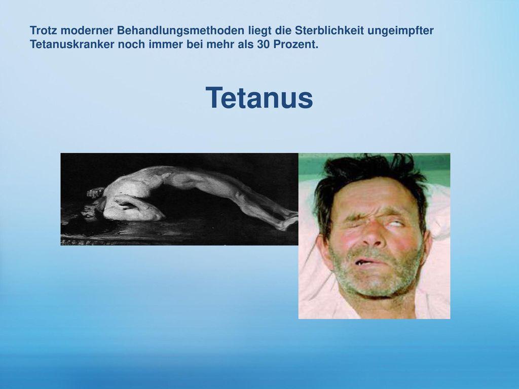 Trotz moderner Behandlungsmethoden liegt die Sterblichkeit ungeimpfter Tetanuskranker noch immer bei mehr als 30 Prozent.