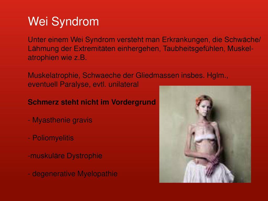 Wei Syndrom Unter einem Wei Syndrom versteht man Erkrankungen, die Schwäche/ Lähmung der Extremitäten einhergehen, Taubheitsgefühlen, Muskel-