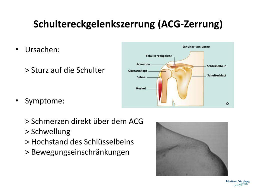 Schultereckgelenkszerrung (ACG-Zerrung)