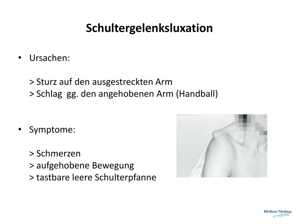 Schultergelenksluxation