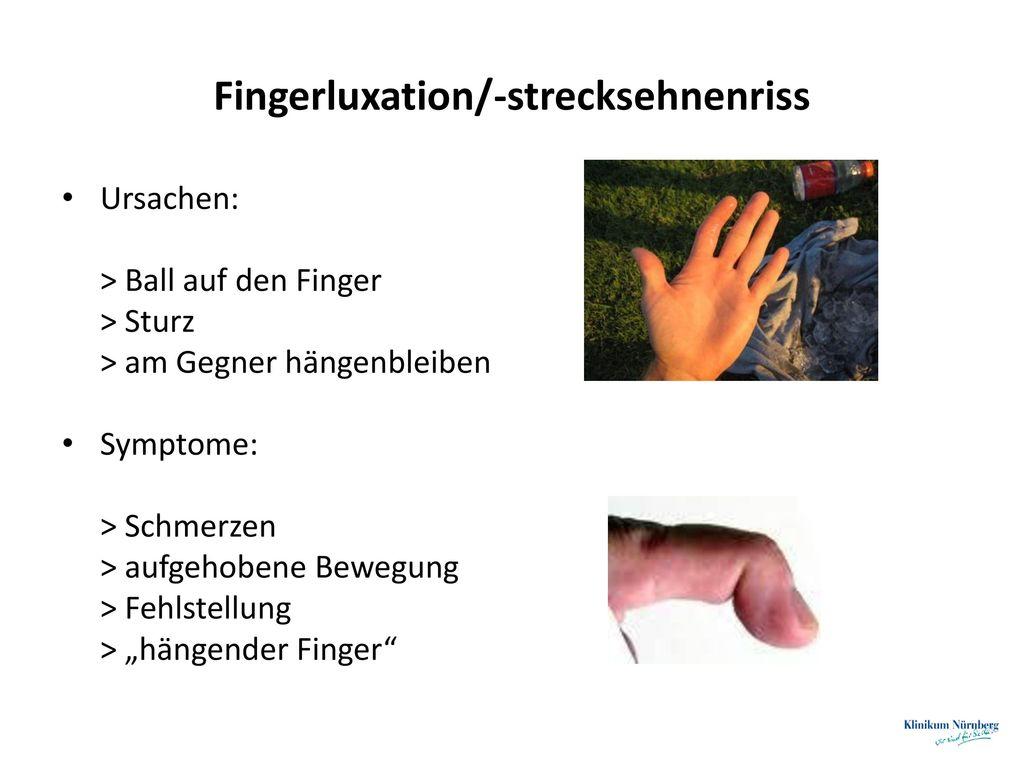 Fingerluxation/-strecksehnenriss