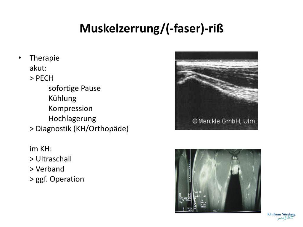 Muskelzerrung/(-faser)-riß