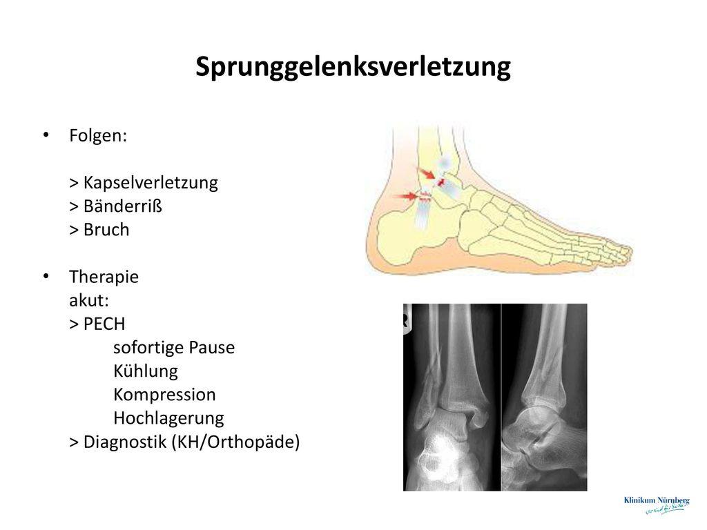 Sprunggelenksverletzung