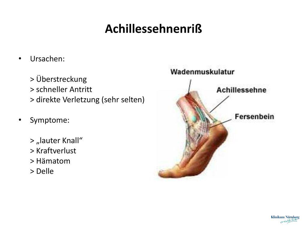 Achillessehnenriß Ursachen: > Überstreckung > schneller Antritt