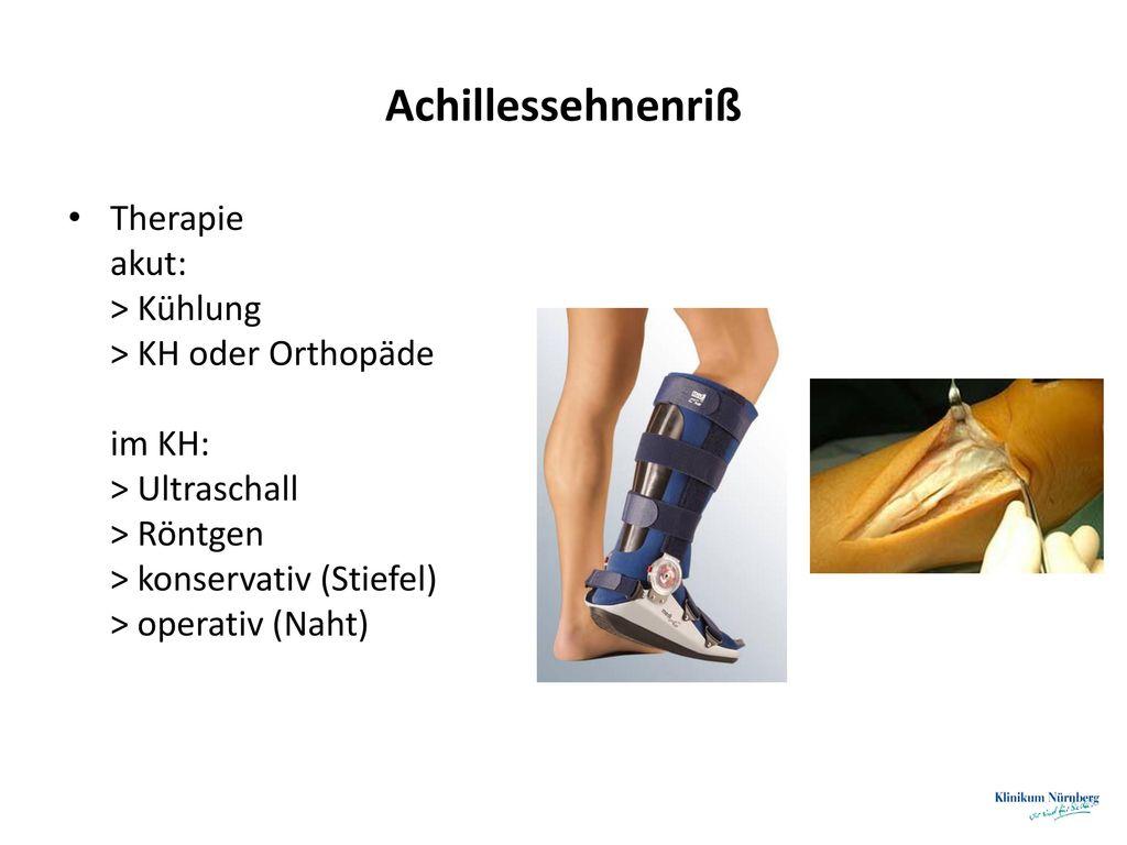 Achillessehnenriß Therapie akut: > Kühlung > KH oder Orthopäde