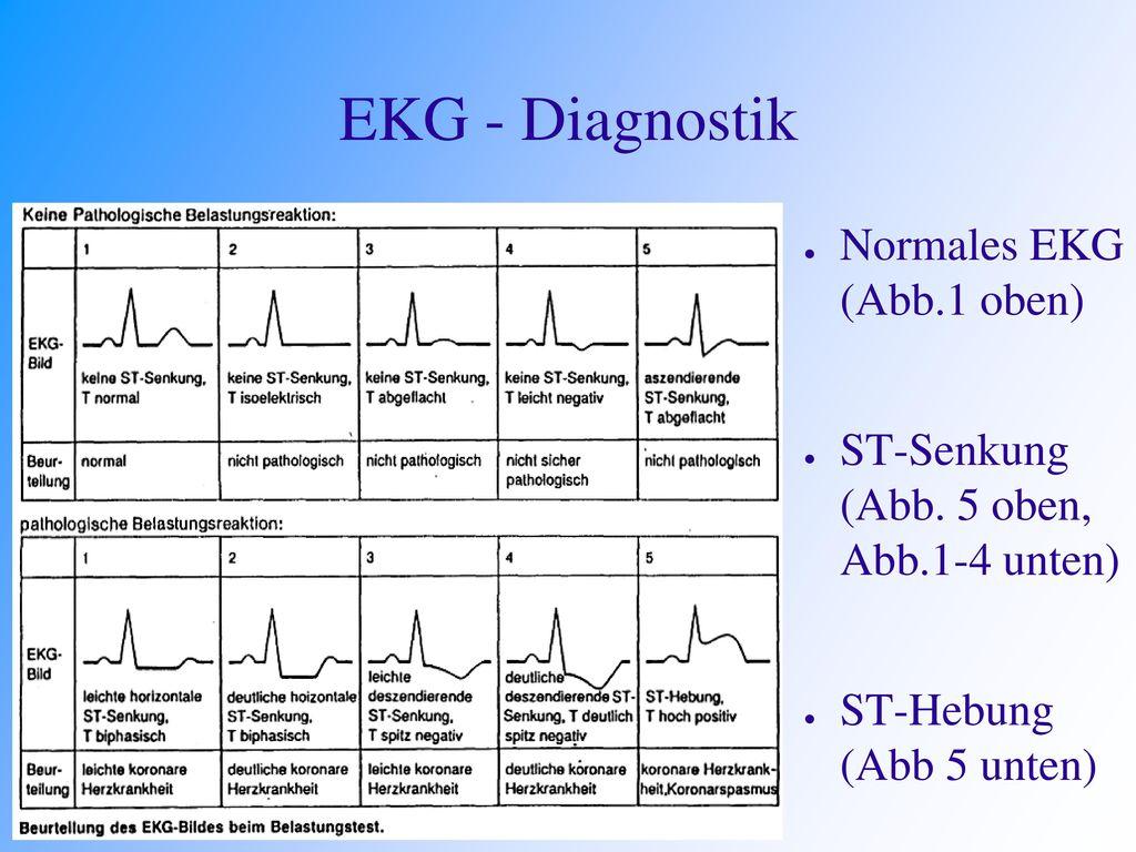 EKG - Diagnostik Normales EKG (Abb.1 oben)