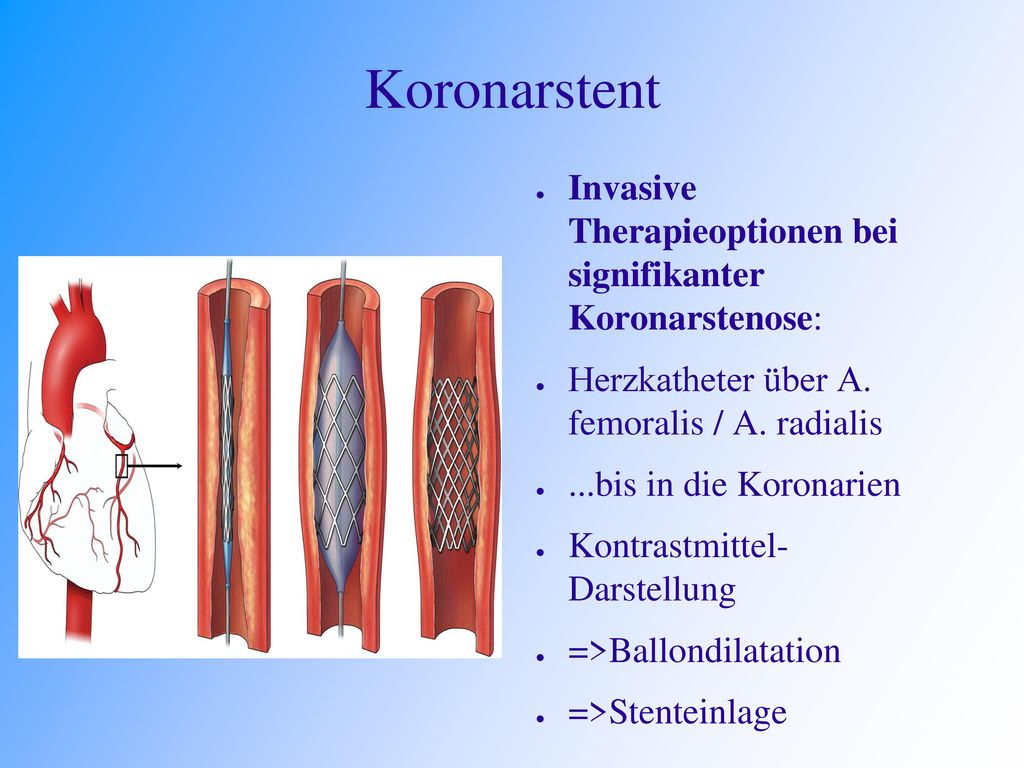 Koronarstent Invasive Therapieoptionen bei signifikanter Koronarstenose: Herzkatheter über A. femoralis / A. radialis.