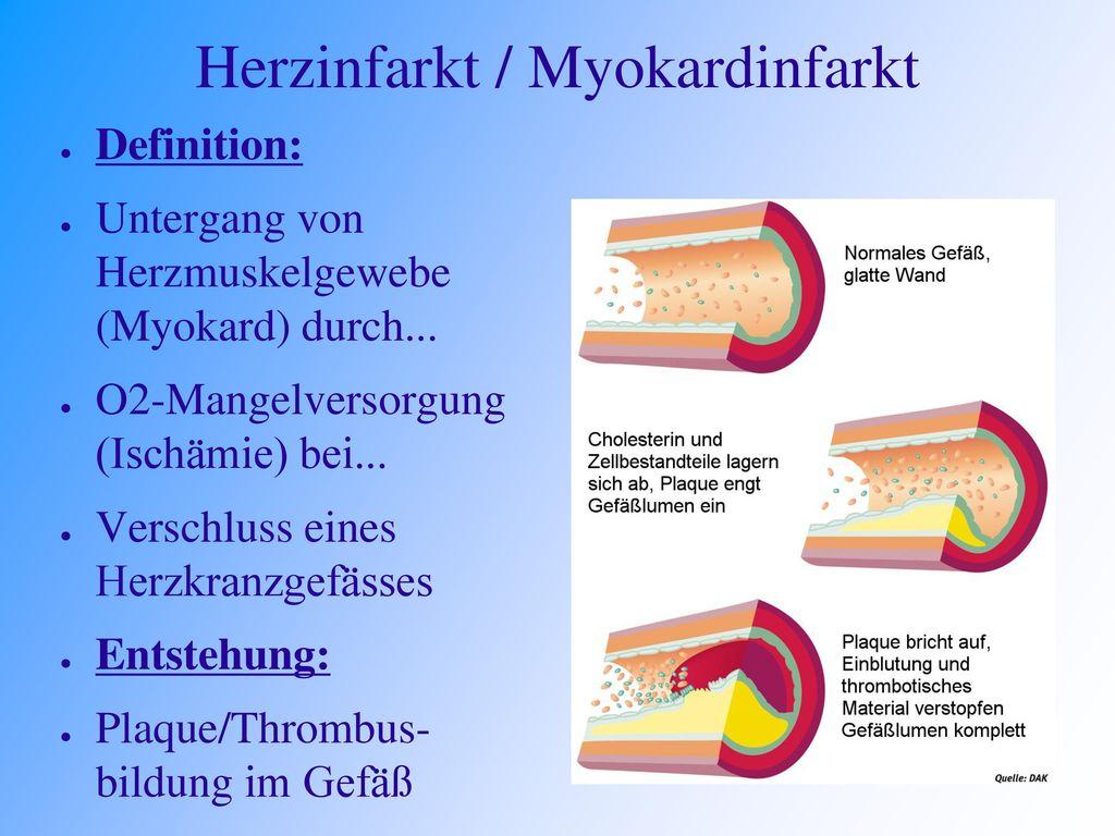 Herzinfarkt / Myokardinfarkt