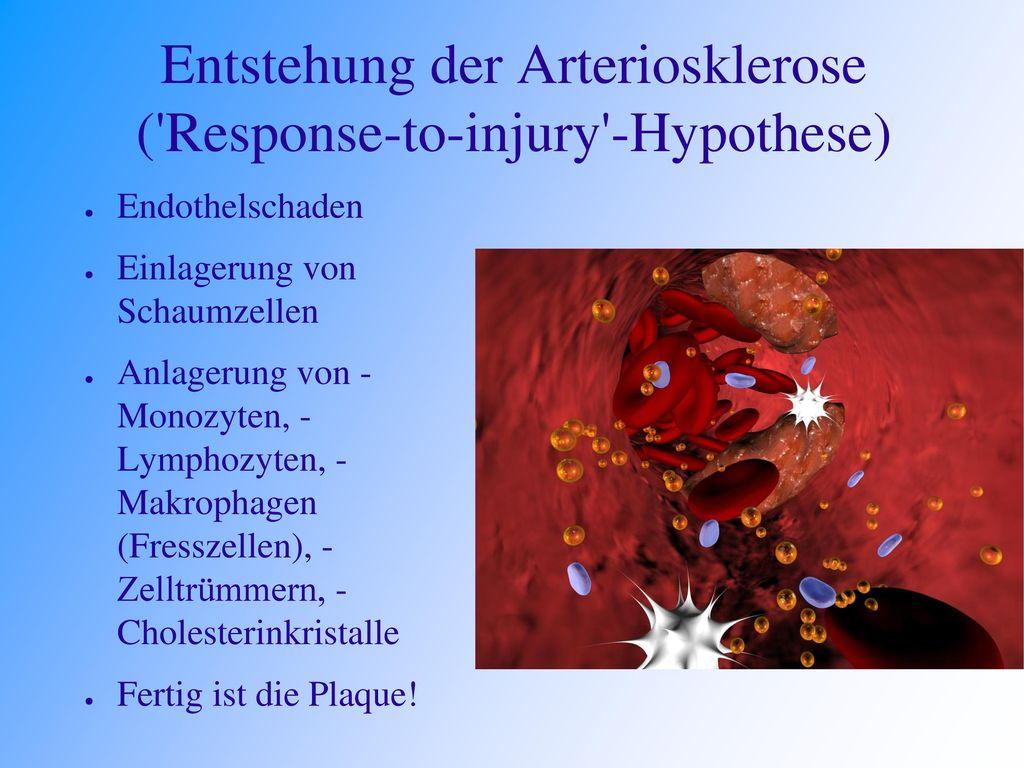 Entstehung der Arteriosklerose ( Response-to-injury -Hypothese)