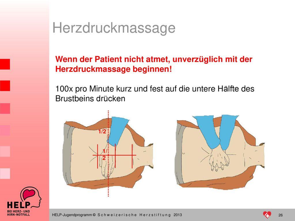 Herzdruckmassage Wenn der Patient nicht atmet, unverzüglich mit der Herzdruckmassage beginnen!