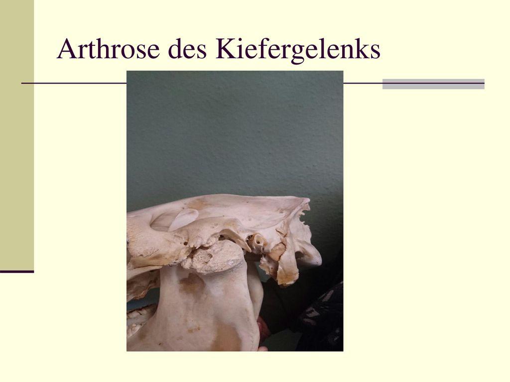 Arthrose des Kiefergelenks