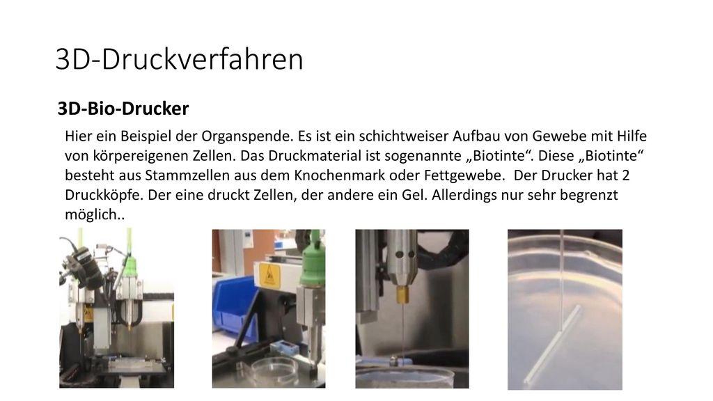 3D-Druckverfahren 3D-Bio-Drucker