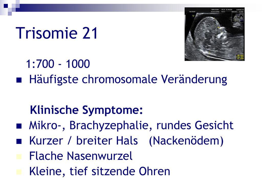Trisomie 21 1:700 - 1000 Häufigste chromosomale Veränderung