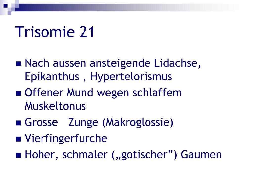 Trisomie 21 Nach aussen ansteigende Lidachse, Epikanthus , Hypertelorismus. Offener Mund wegen schlaffem Muskeltonus.