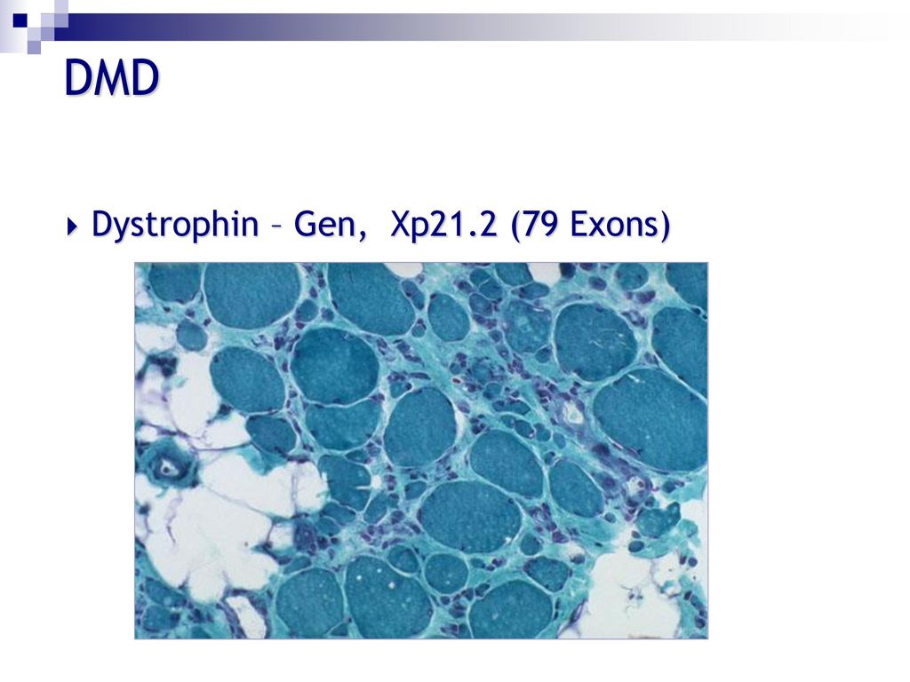 DMD Dystrophin – Gen, Xp21.2 (79 Exons)