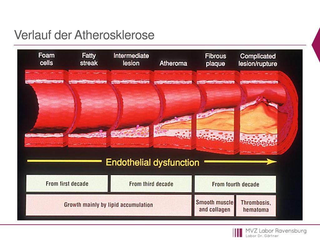 Verlauf der Atherosklerose