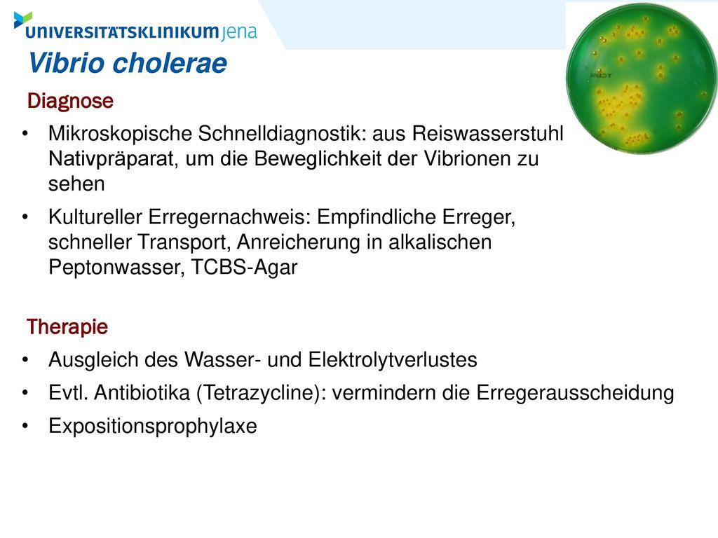 Vibrio cholerae Diagnose Therapie