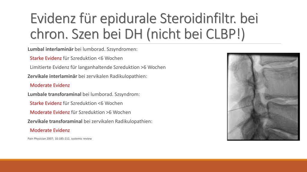 Evidenz für epidurale Steroidinfiltr. bei chron