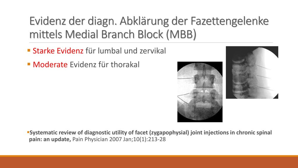 Evidenz der diagn. Abklärung der Fazettengelenke mittels Medial Branch Block (MBB)