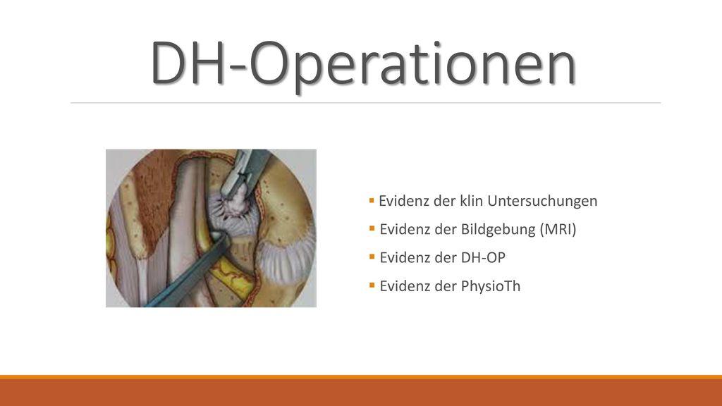 DH-Operationen Evidenz der Bildgebung (MRI) Evidenz der DH-OP