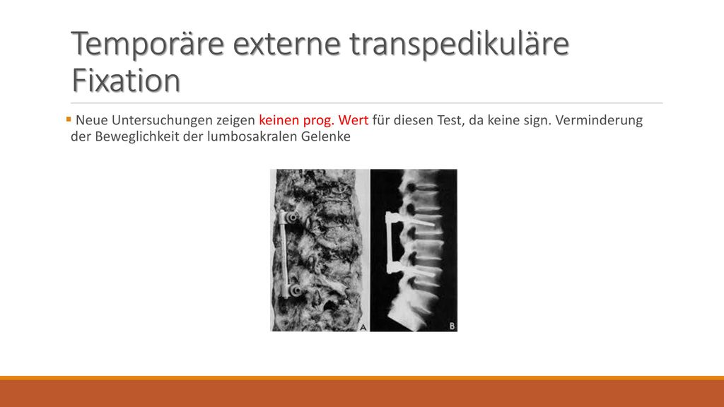 Temporäre externe transpedikuläre Fixation