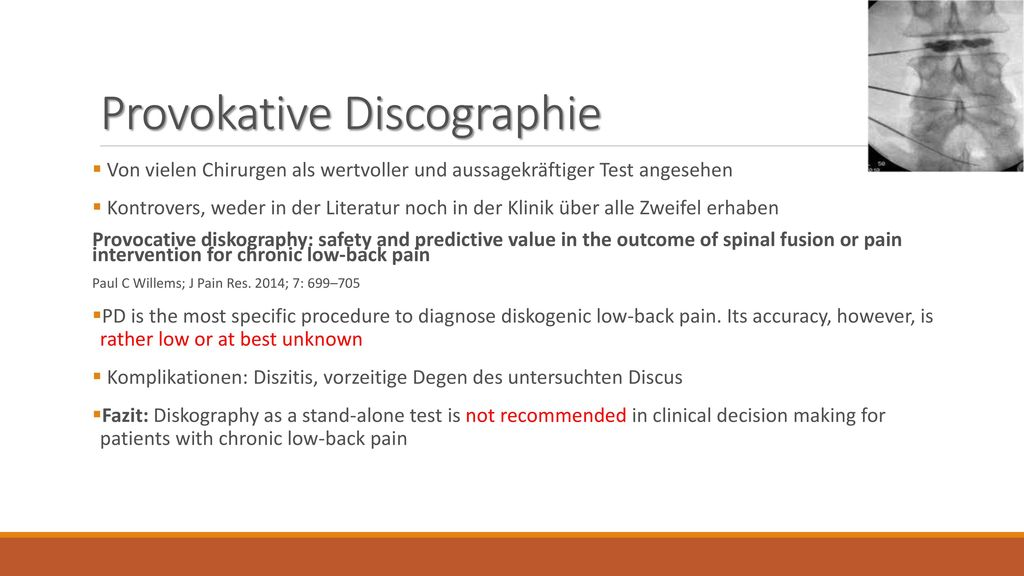 Provokative Discographie